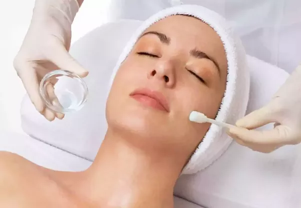face peel process